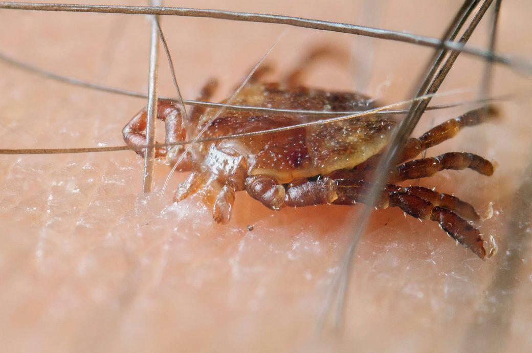 Zecken überfallen Jeden, beißen sich überall fest und können für Krankheiten sorgen